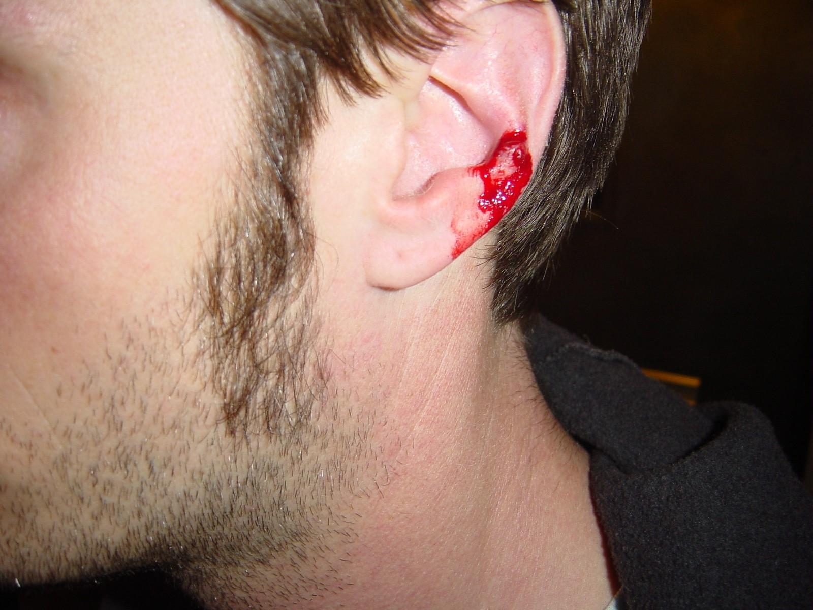 bloody ear
