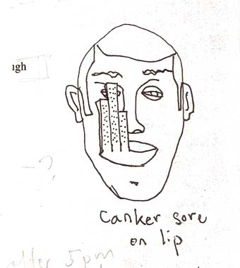 cankersore.jpg